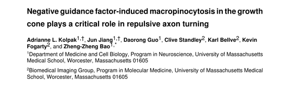 Negative guidance factor-induced macropinocytosis in the growth cone plays a critical role in repulsive axon turning